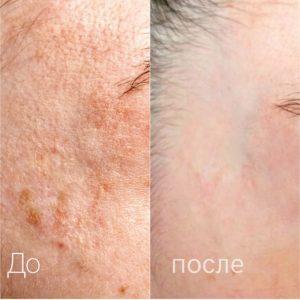 міропігментування шкіра до та після