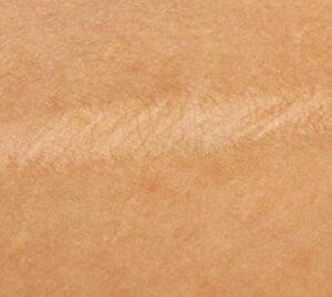 рубець після маммопластики
