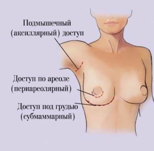 типы рубцов после маммопластики