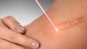 удаление рубцов после маммопластики